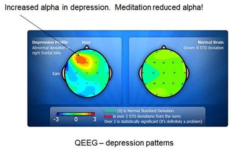 QEEG Depression Patterns